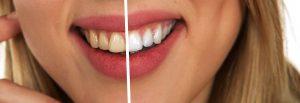 Tahukah Anda?? Karang Gigi Bisa Menyebabkan Gigi Goyang dan Lepas Dari Gusi